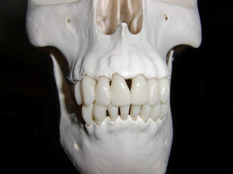 Powierz wstawienie implantów zębów specjalistom